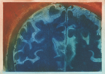 Exploration+I+(axial+view+of+the+neo-cortex+of+the+artist's+brain)